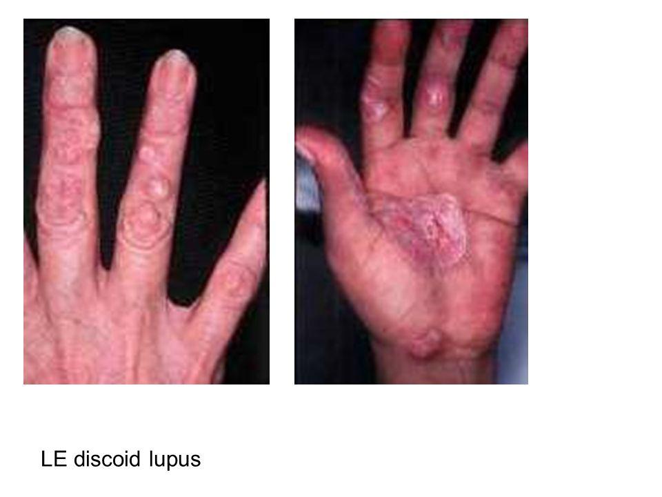 LE discoid lupus