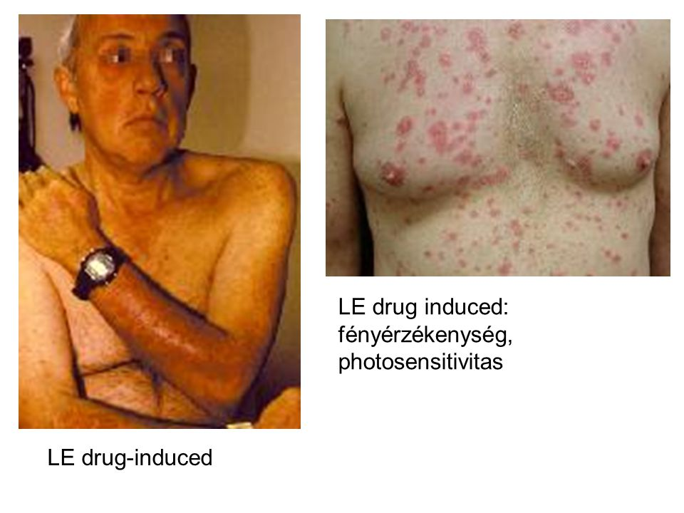 LE drug-induced LE drug induced: fényérzékenység, photosensitivitas