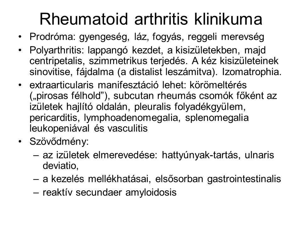 Rheumatoid arthritis klinikuma Prodróma: gyengeség, láz, fogyás, reggeli merevség Polyarthritis: lappangó kezdet, a kisizületekben, majd centripetalis