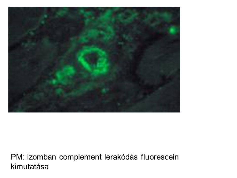 PM: izomban complement lerakódás fluorescein kimutatása