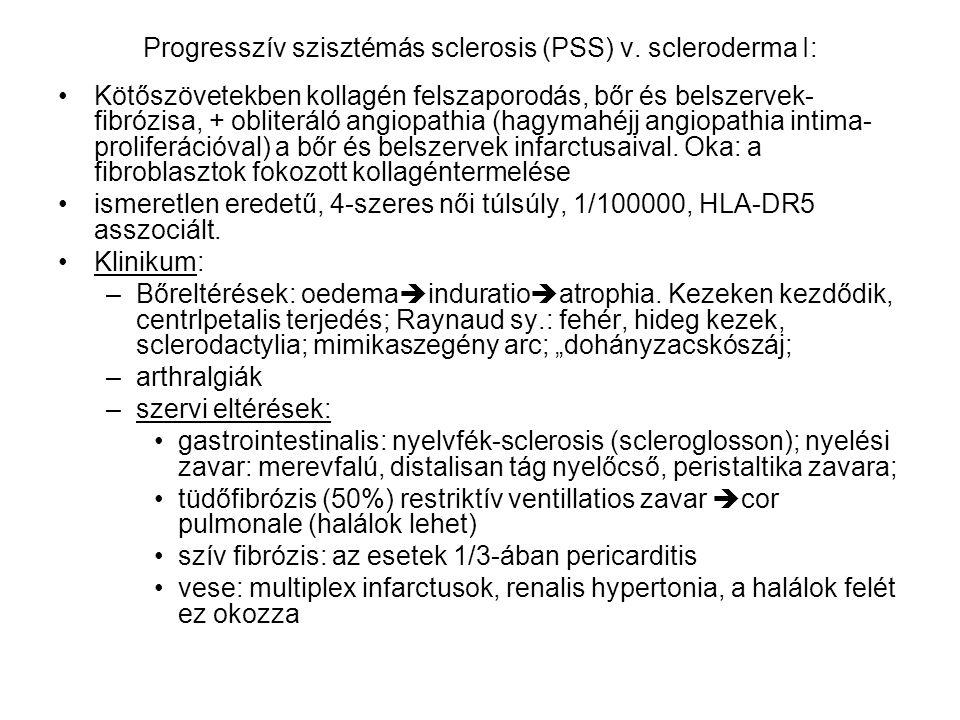 Progresszív szisztémás sclerosis (PSS) v. scleroderma I: Kötőszövetekben kollagén felszaporodás, bőr és belszervek- fibrózisa, + obliteráló angiopathi
