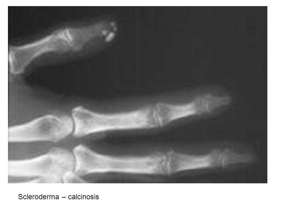 Scleroderma – calcinosis