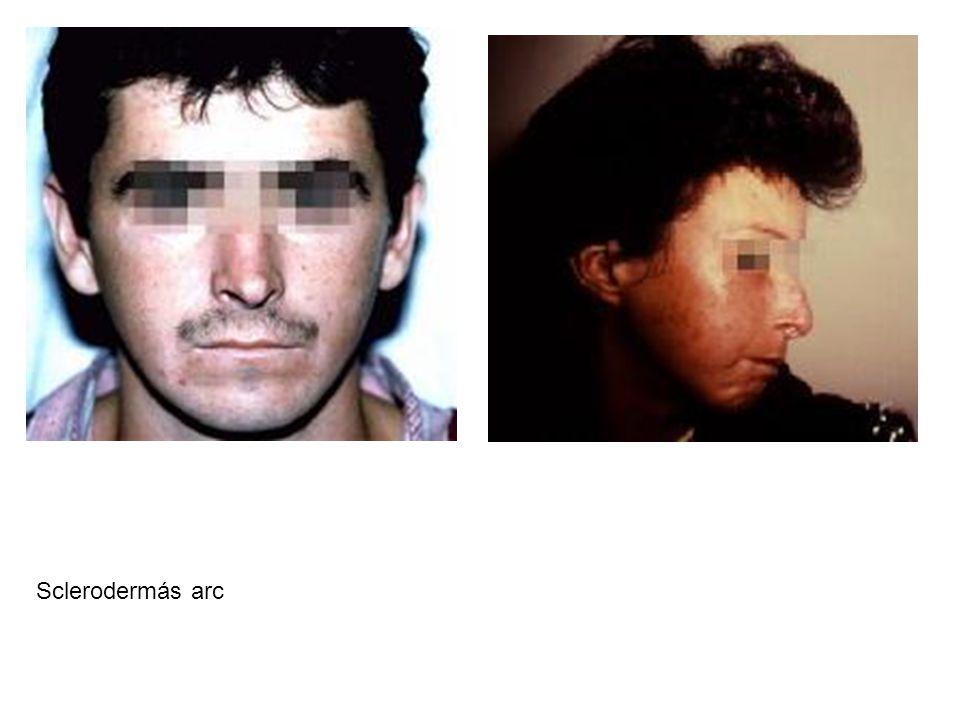 Sclerodermás arc