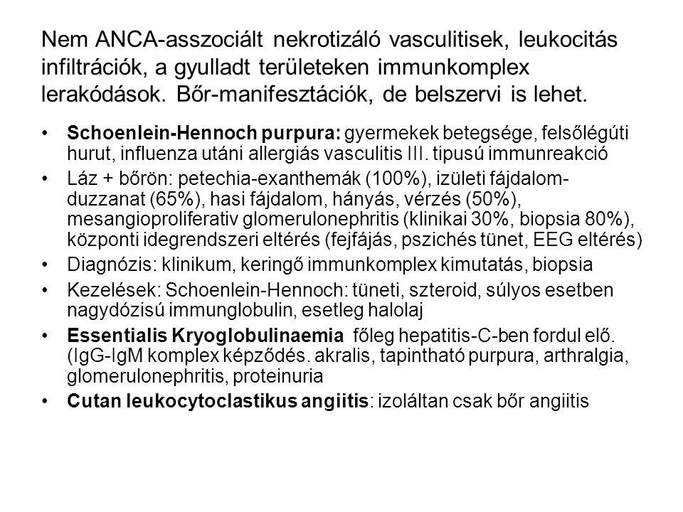 Nem ANCA-asszociált nekrotizáló vasculitisek, leukocitás infiltrációk, a gyulladt területeken immunkomplex lerakódások. Bőr-manifesztációk, de belszer