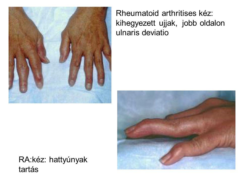 RA:kéz: hattyúnyak tartás Rheumatoid arthritises kéz: kihegyezett ujjak, jobb oldalon ulnaris deviatio