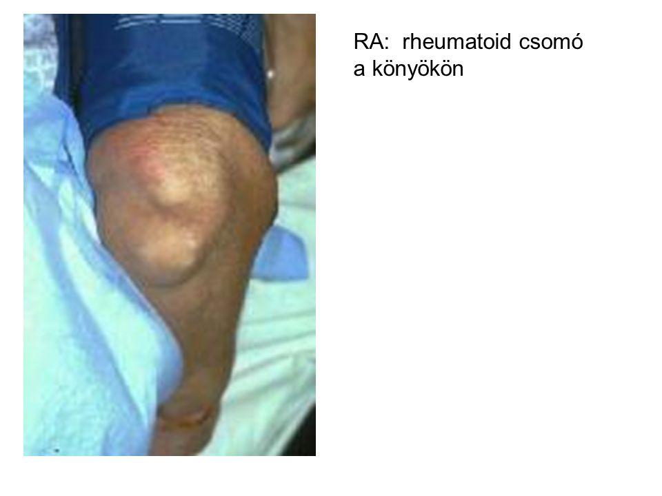 RA különleges formái Felty sy: súlyos, lép, nycs.duzzanat, granulocytopenia.