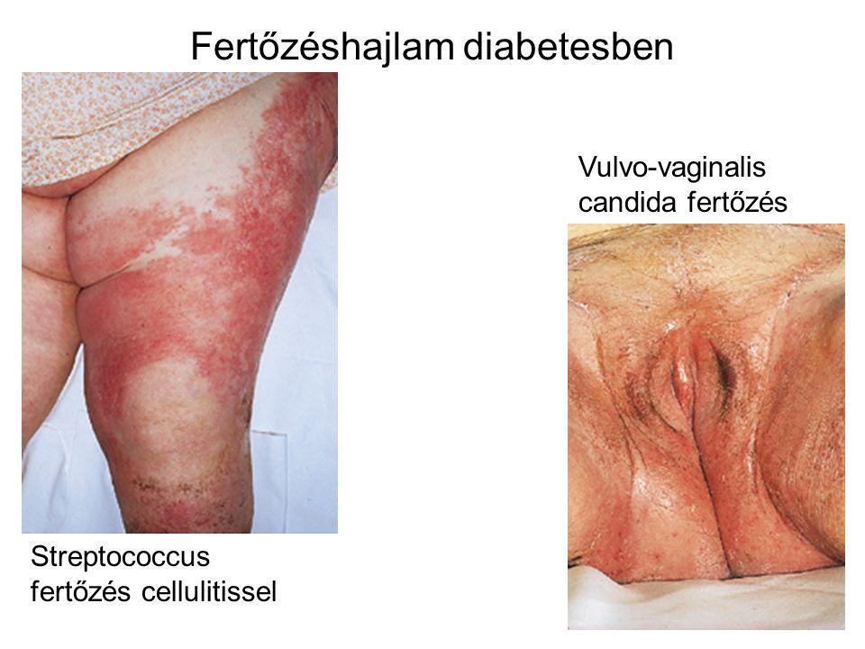 Fertőzéshajlam diabetesben Streptococcus fertőzés cellulitissel Vulvo-vaginalis candida fertőzés
