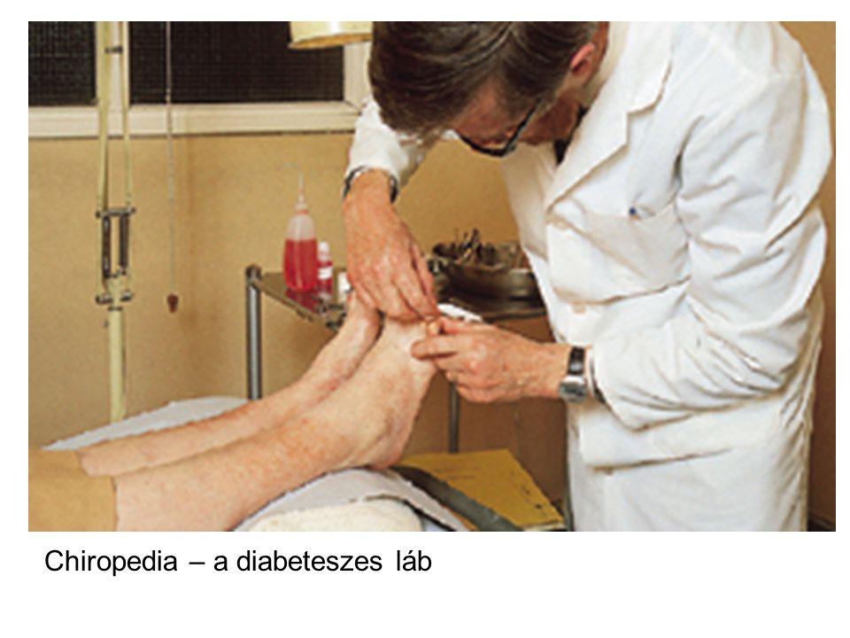 Chiropedia – a diabeteszes láb
