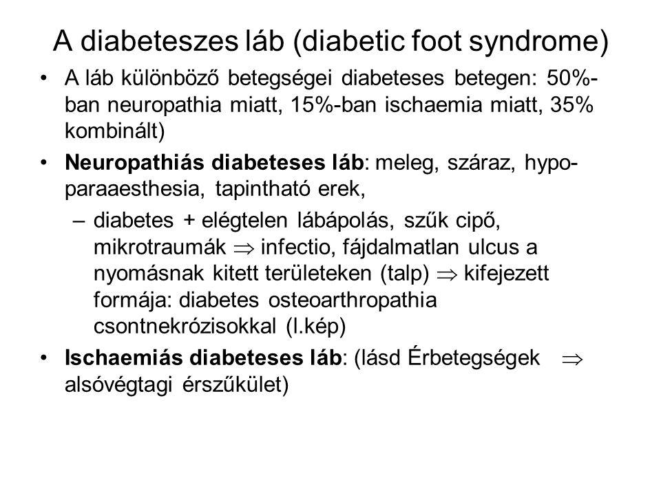 A diabeteszes láb (diabetic foot syndrome) A láb különböző betegségei diabeteses betegen: 50%- ban neuropathia miatt, 15%-ban ischaemia miatt, 35% kom