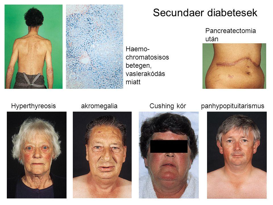 Hyperthyreosis akromegalia Cushing kór panhypopituitarismus Secundaer diabetesek Pancreatectomia után Haemo- chromatosisos betegen, vaslerakódás miatt