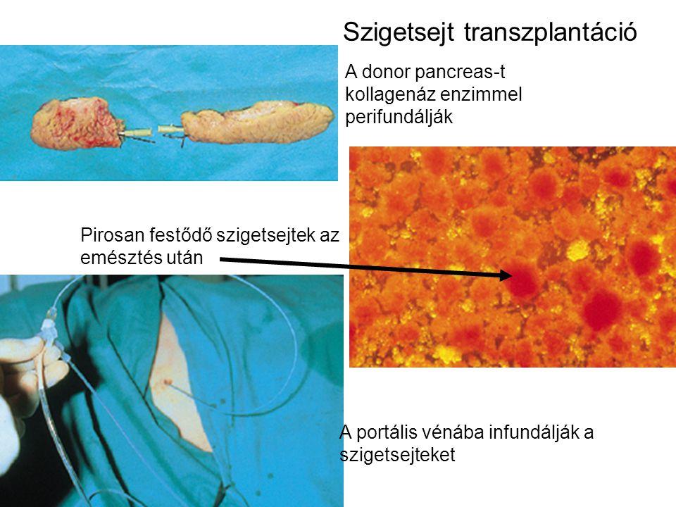 A donor pancreas-t kollagenáz enzimmel perifundálják Pirosan festődő szigetsejtek az emésztés után A portális vénába infundálják a szigetsejteket