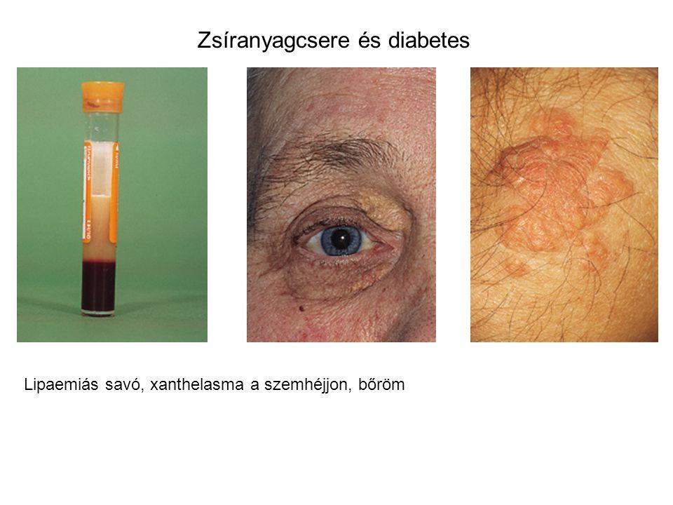 Zsíranyagcsere és diabetes Lipaemiás savó, xanthelasma a szemhéjjon, bőröm