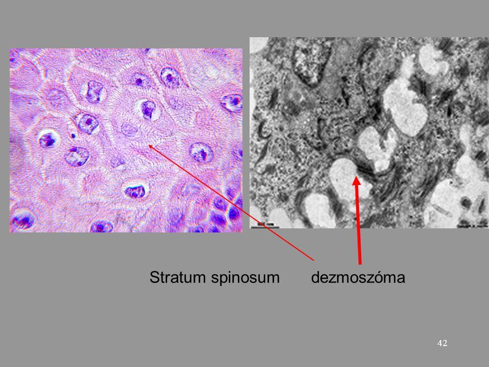 42 Stratum spinosumdezmoszóma