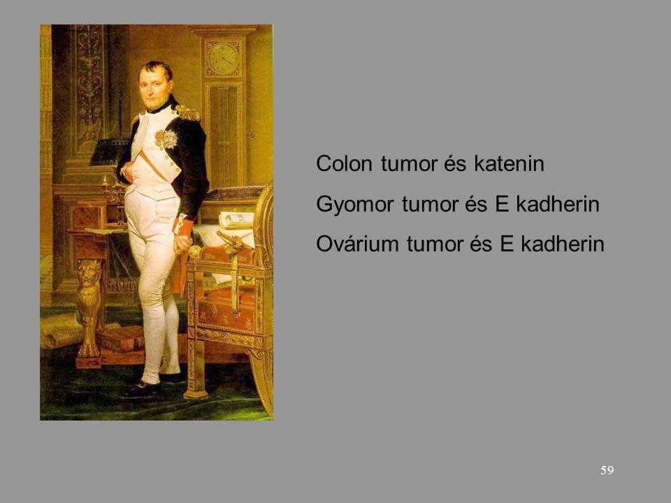 59 Colon tumor és katenin Gyomor tumor és E kadherin Ovárium tumor és E kadherin