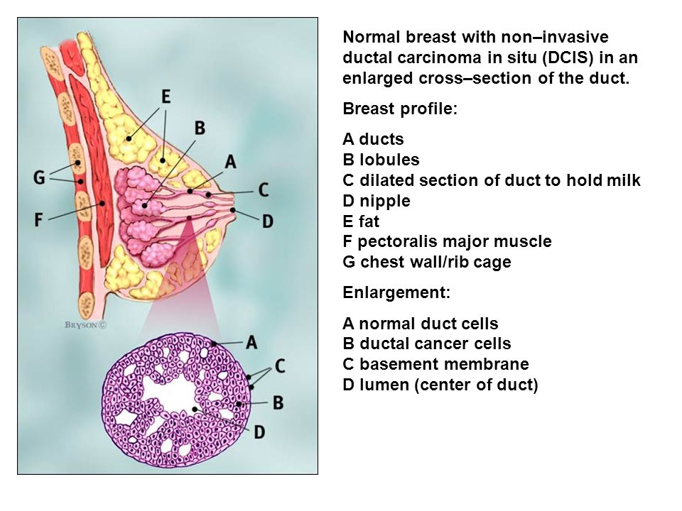 Normal breast with non–invasive ductal carcinoma in situ (DCIS) in an enlarged cross–section of the duct. Breast profile: A ducts B lobules C dilated