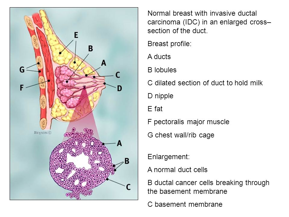 Normal breast with invasive ductal carcinoma (IDC) in an enlarged cross– section of the duct. Breast profile: A ducts B lobules C dilated section of d