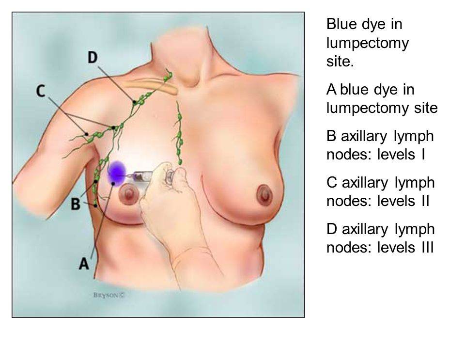 Blue dye in lumpectomy site. A blue dye in lumpectomy site B axillary lymph nodes: levels I C axillary lymph nodes: levels II D axillary lymph nodes:
