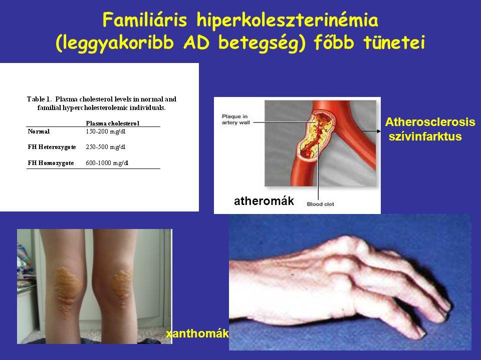 Familiáris hiperkoleszterinémia (leggyakoribb AD betegség) főbb tünetei Atherosclerosis szívinfarktus xanthomák atheromák