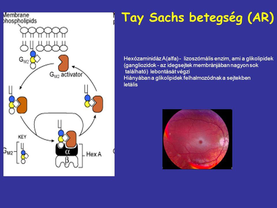Tay Sachs betegség (AR) Hexózaminidáz A(alfa) - lizoszómális enzim, ami a glikolipidek (gangliozidok - az idegsejtek membránjában nagyon sok található