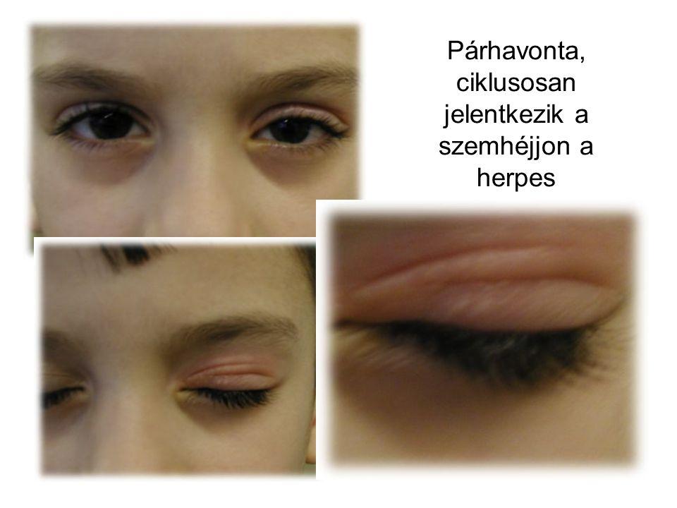 Párhavonta, ciklusosan jelentkezik a szemhéjjon a herpes
