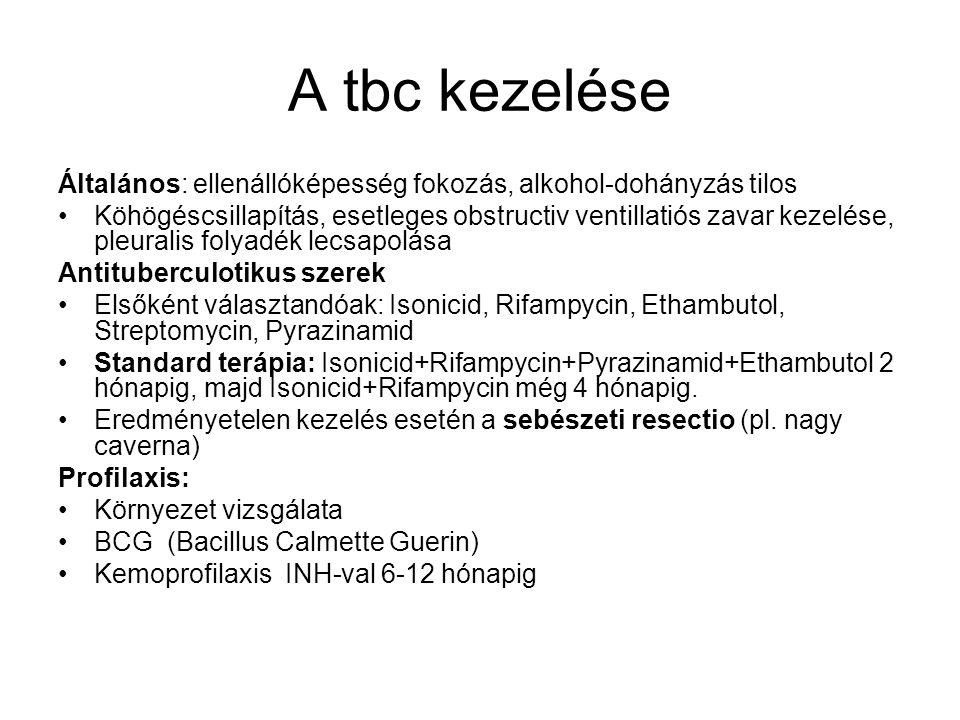 A tbc kezelése Általános: ellenállóképesség fokozás, alkohol-dohányzás tilos Köhögéscsillapítás, esetleges obstructiv ventillatiós zavar kezelése, ple