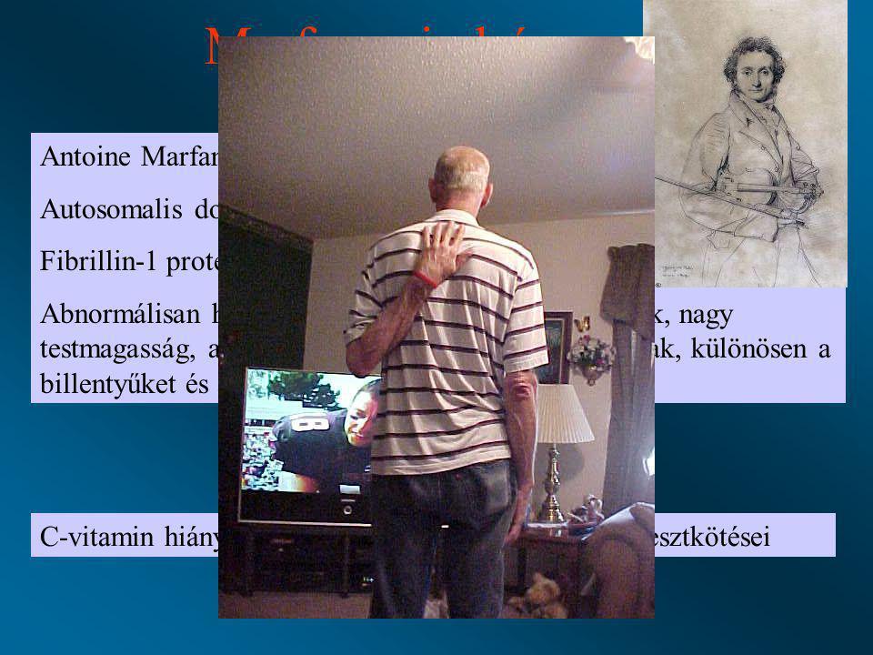 Marfan szindróma Antoine Marfan 1899 Autosomalis domináns genetikai betegség Fibrillin-1 protein – rugalmas rost szintézis Abnormálisan hosszú végtago