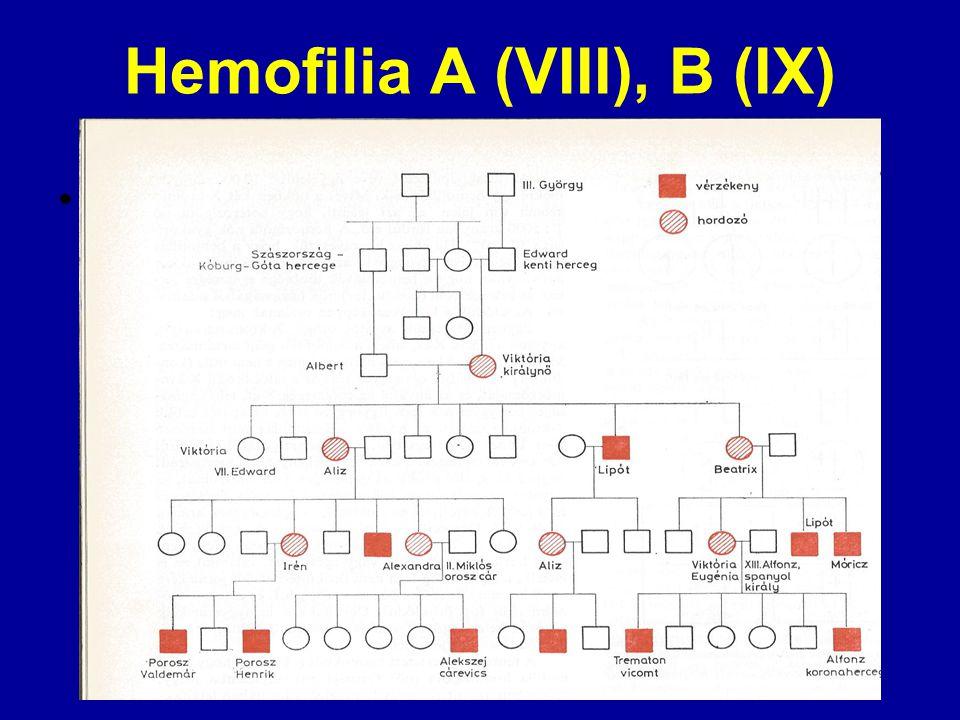 Hemofilia A (VIII), B (IX) családfa