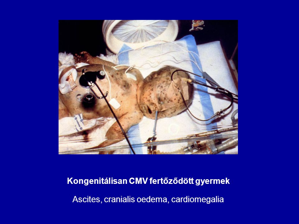 Kongenitálisan CMV fertőződött gyermek Ascites, cranialis oedema, cardiomegalia
