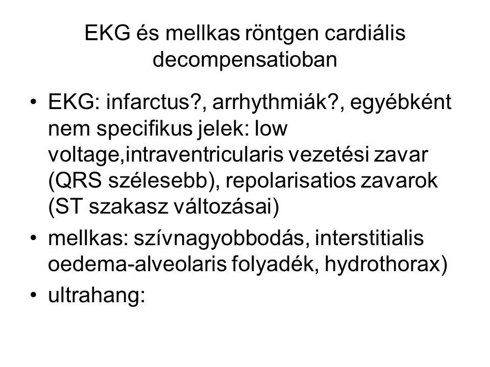 EKG és mellkas röntgen cardiális decompensatioban EKG: infarctus?, arrhythmiák?, egyébként nem specifikus jelek: low voltage,intraventricularis vezeté