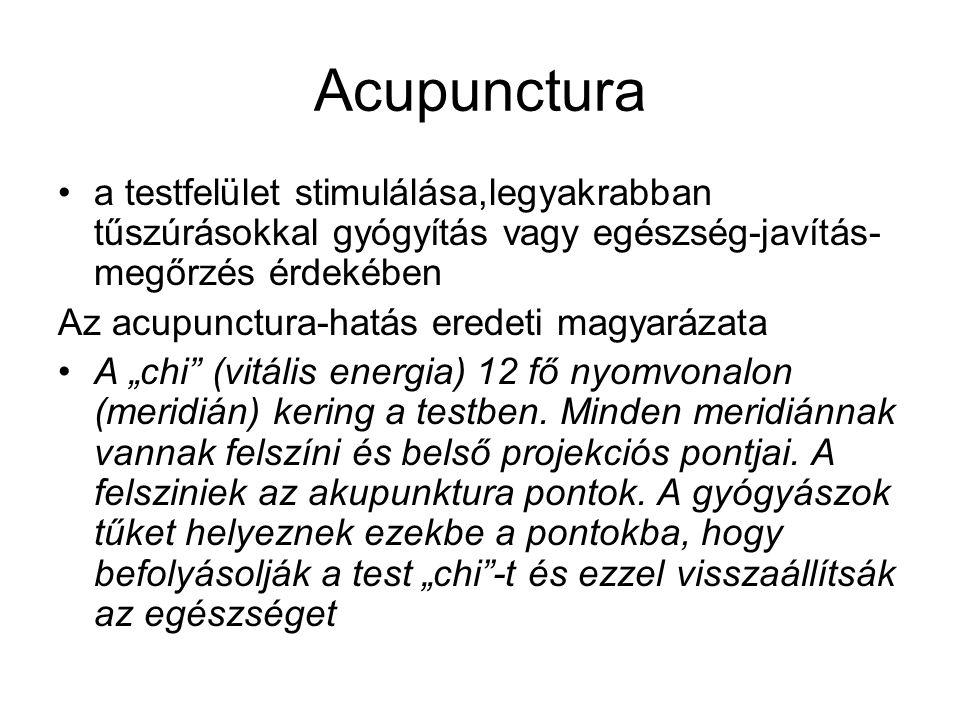 Acupunctura a testfelület stimulálása,legyakrabban tűszúrásokkal gyógyítás vagy egészség-javítás- megőrzés érdekében Az acupunctura-hatás eredeti magy