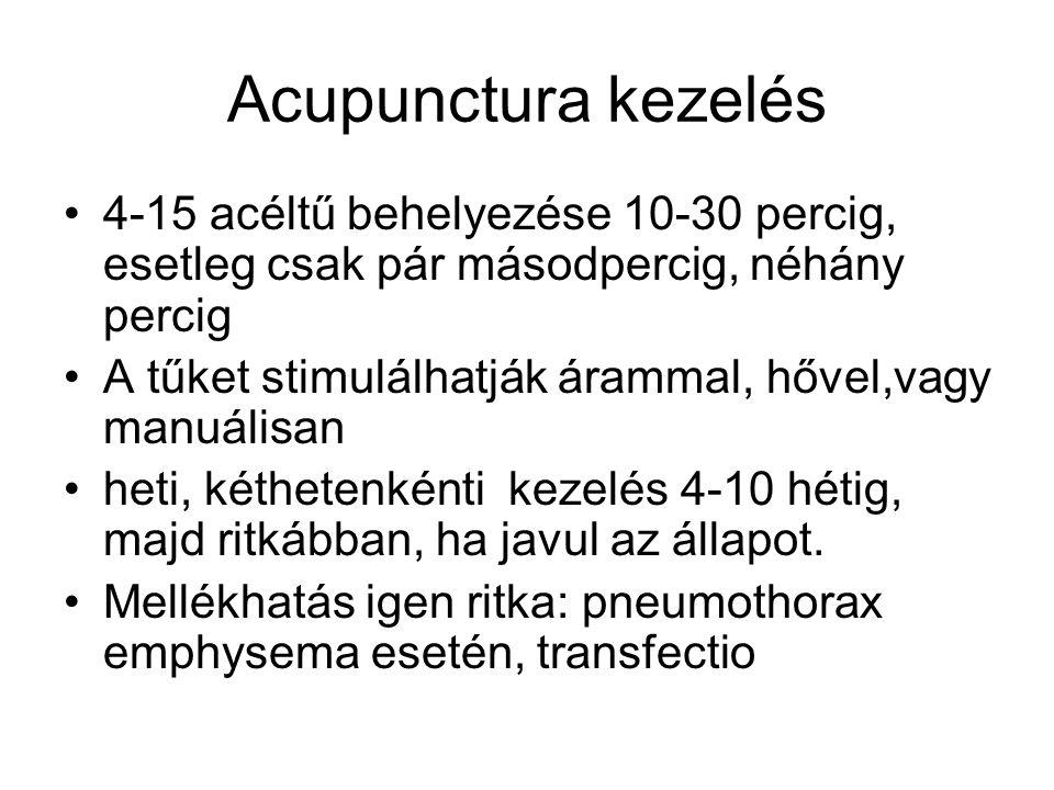 Acupunctura kezelés 4-15 acéltű behelyezése 10-30 percig, esetleg csak pár másodpercig, néhány percig A tűket stimulálhatják árammal, hővel,vagy manuá
