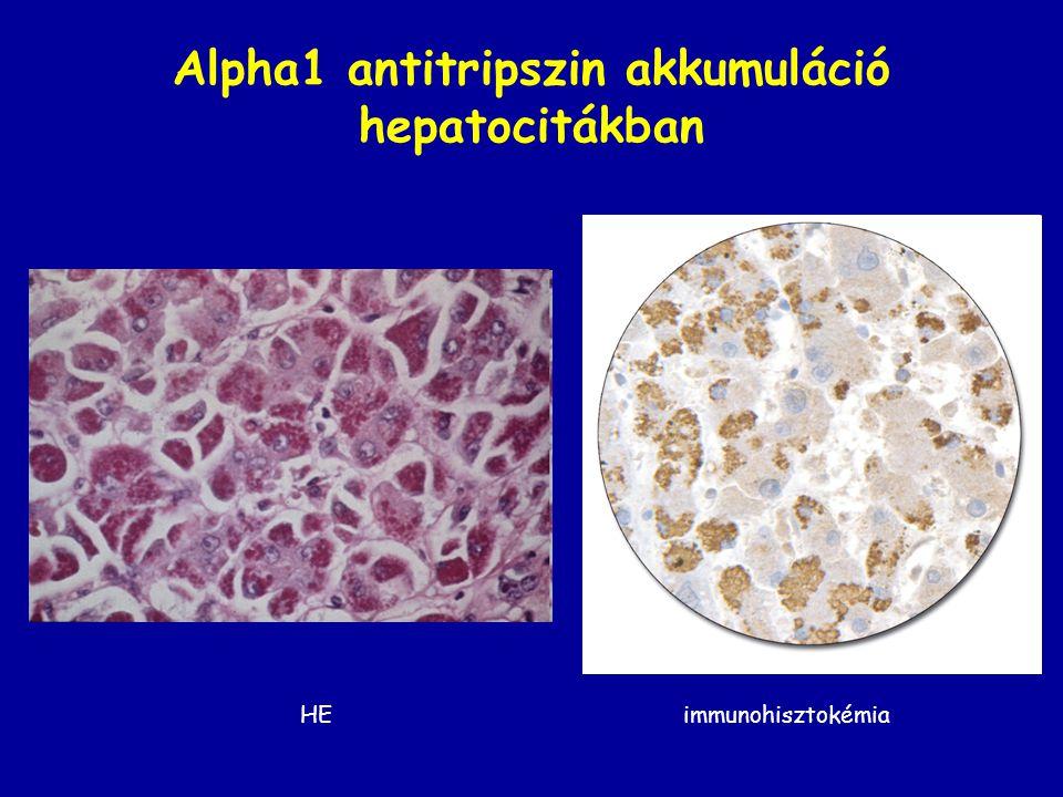 Alpha1 antitripszin akkumuláció hepatocitákban HE immunohisztokémia