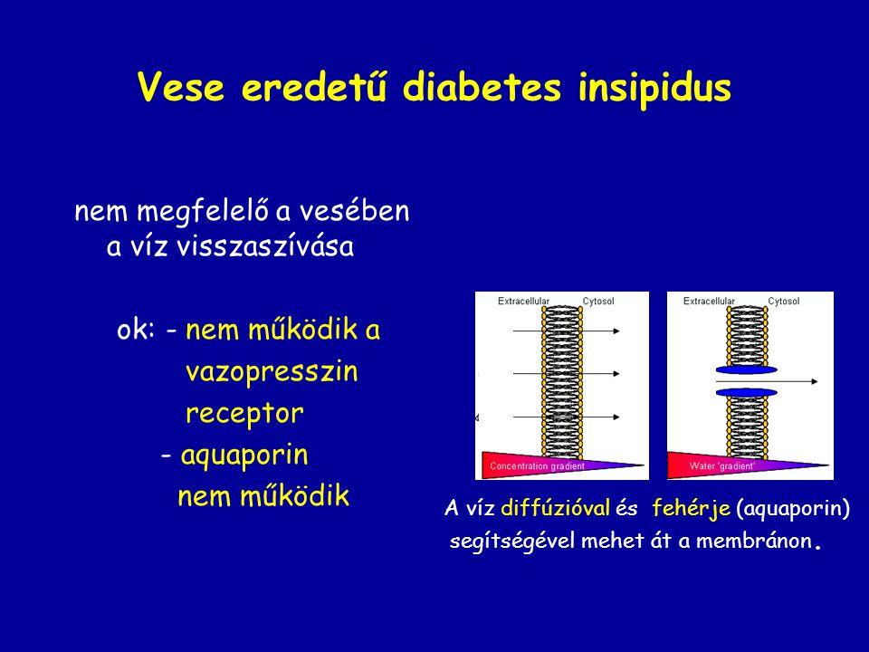 Vese eredetű diabetes insipidus nem megfelelő a vesében a víz visszaszívása ok: - nem működik a vazopresszin receptor - aquaporin nem működik A víz di