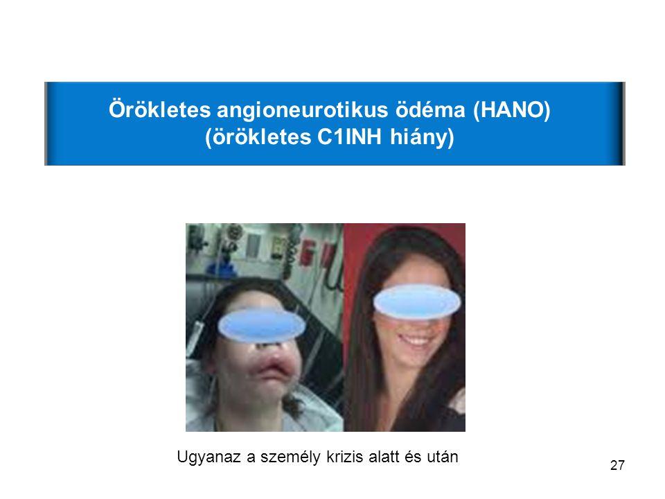 27 Örökletes angioneurotikus ödéma (HANO) (örökletes C1INH hiány) Ugyanaz a személy krizis alatt és után