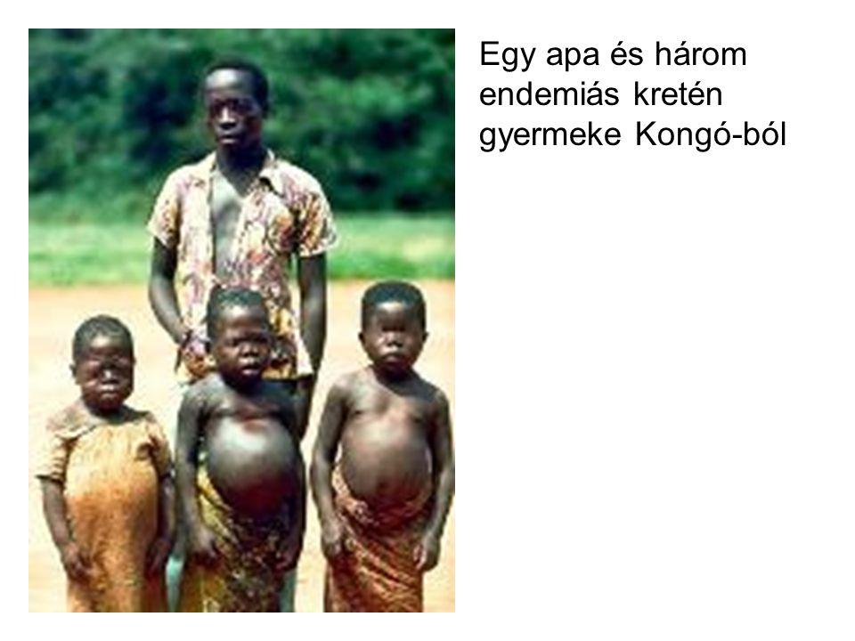 Egy apa és három endemiás kretén gyermeke Kongó-ból