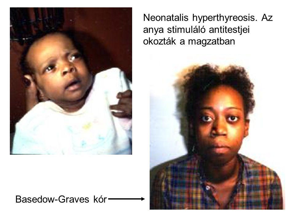 Neonatalis hyperthyreosis. Az anya stimuláló antitestjei okozták a magzatban Basedow-Graves kór