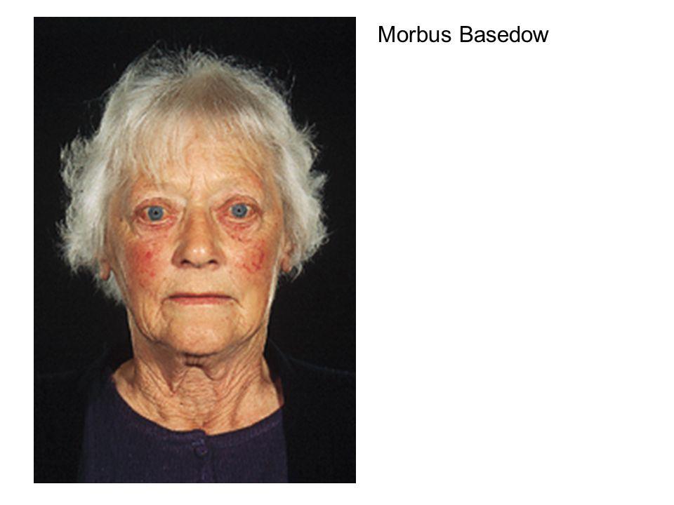 Morbus Basedow