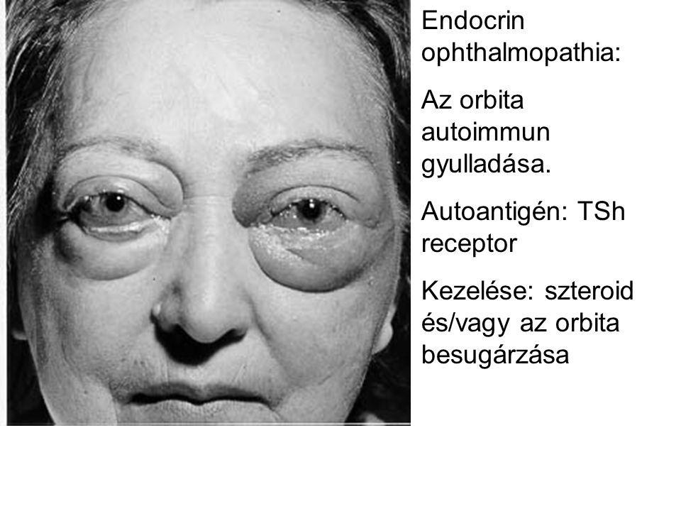 Endocrin ophthalmopathia: Az orbita autoimmun gyulladása. Autoantigén: TSh receptor Kezelése: szteroid és/vagy az orbita besugárzása