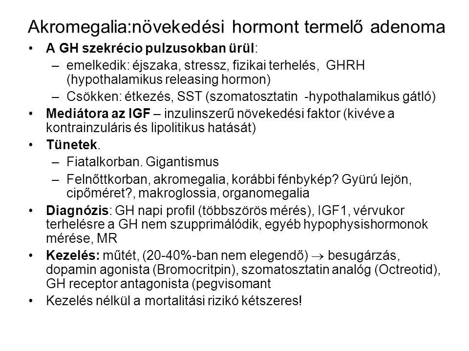 Akromegalia:növekedési hormont termelő adenoma A GH szekrécio pulzusokban ürül: –emelkedik: éjszaka, stressz, fizikai terhelés, GHRH (hypothalamikus r