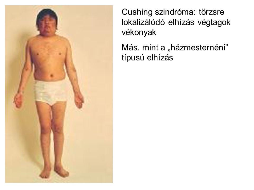 """Cushing szindróma: törzsre lokalizálódó elhízás végtagok vékonyak Más. mint a """"házmesternéni"""" típusú elhízás"""