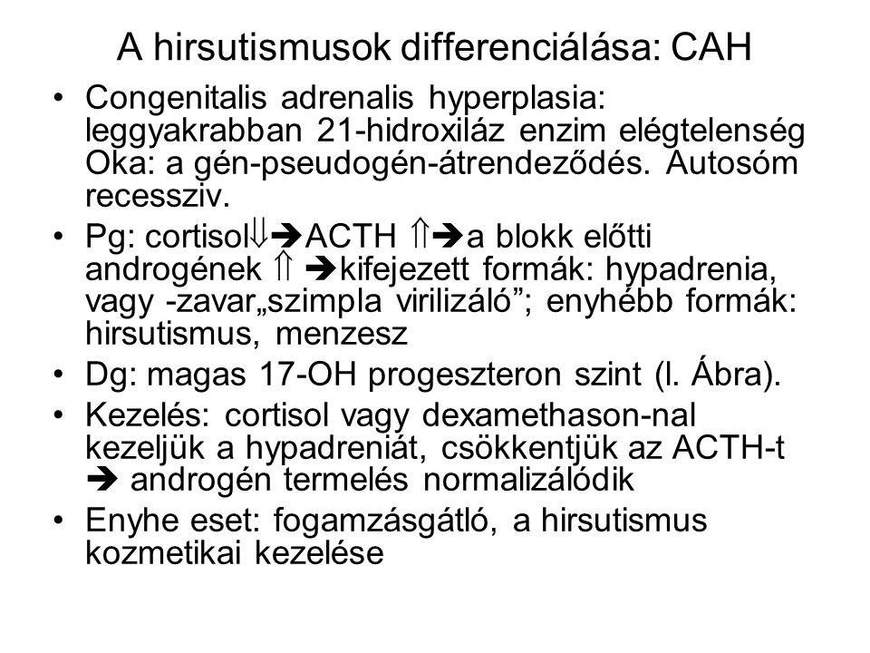 A hirsutismusok differenciálása: CAH Congenitalis adrenalis hyperplasia: leggyakrabban 21-hidroxiláz enzim elégtelenség Oka: a gén-pseudogén-átrendező