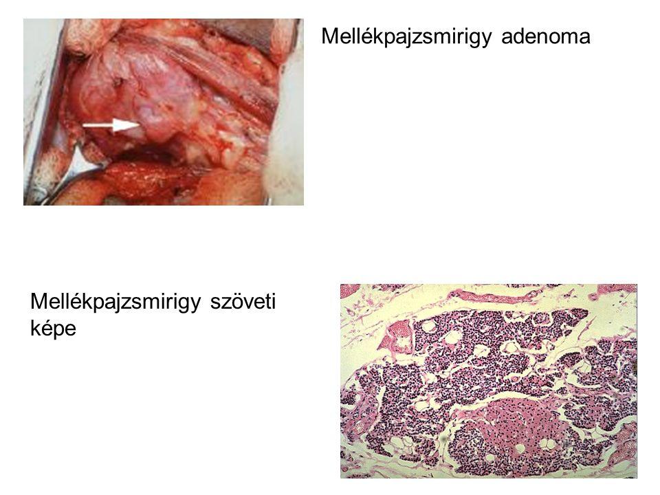 Mellékpajzsmirigy adenoma Mellékpajzsmirigy szöveti képe