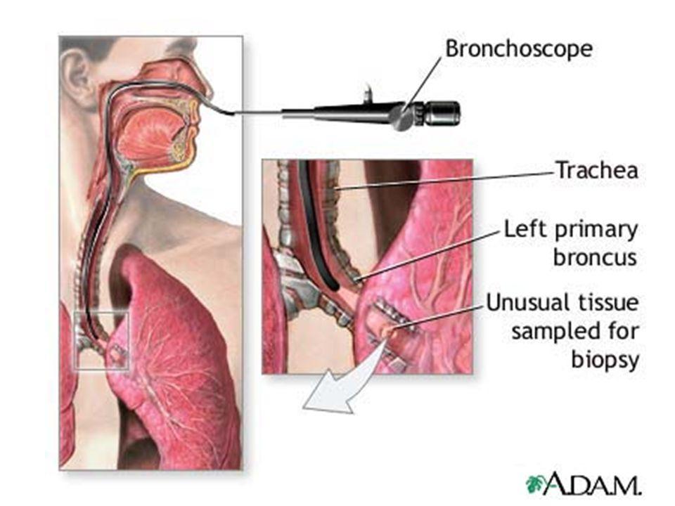 Interstitialis tüdőbetegségek és fibrózisok klinikuma és diagnózisa Tünetek: progrediáló terheléses dyspnoe, később nyugalmi és tachypnoe, felületes légzés száraz köhögés végstádiumban cyanosis, dobverő ujjak, óraüveg körmök, cyanosis, cor pulmonale Diagnózis: Fő kritériumok: –van ok: l.