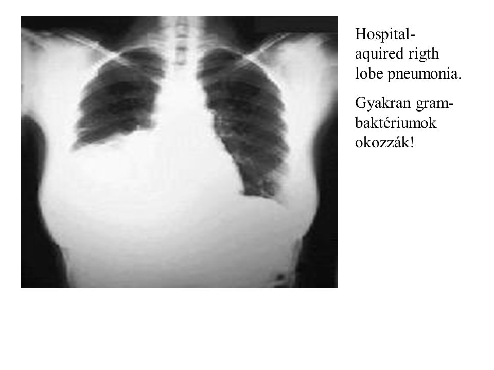 Hospital- aquired rigth lobe pneumonia. Gyakran gram- baktériumok okozzák!