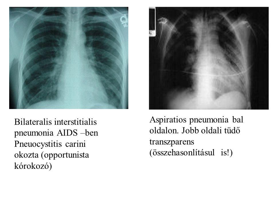 Bilateralis interstitialis pneumonia AIDS –ben Pneuocystitis carini okozta (opportunista kórokozó) Aspiratios pneumonia bal oldalon. Jobb oldali tüdő