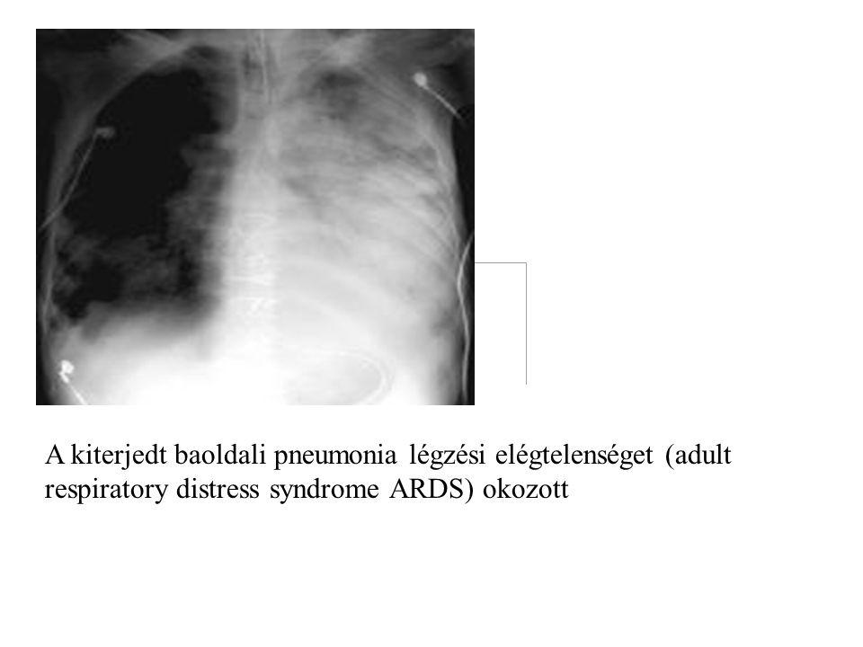 A kiterjedt baoldali pneumonia légzési elégtelenséget (adult respiratory distress syndrome ARDS) okozott