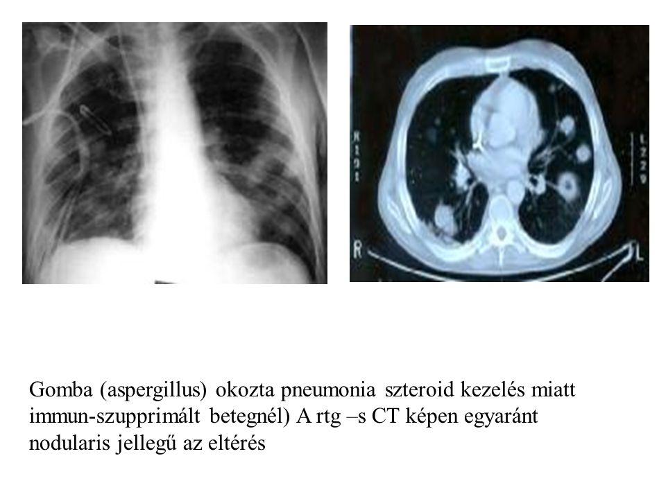 Gomba (aspergillus) okozta pneumonia szteroid kezelés miatt immun-szupprimált betegnél) A rtg –s CT képen egyaránt nodularis jellegű az eltérés