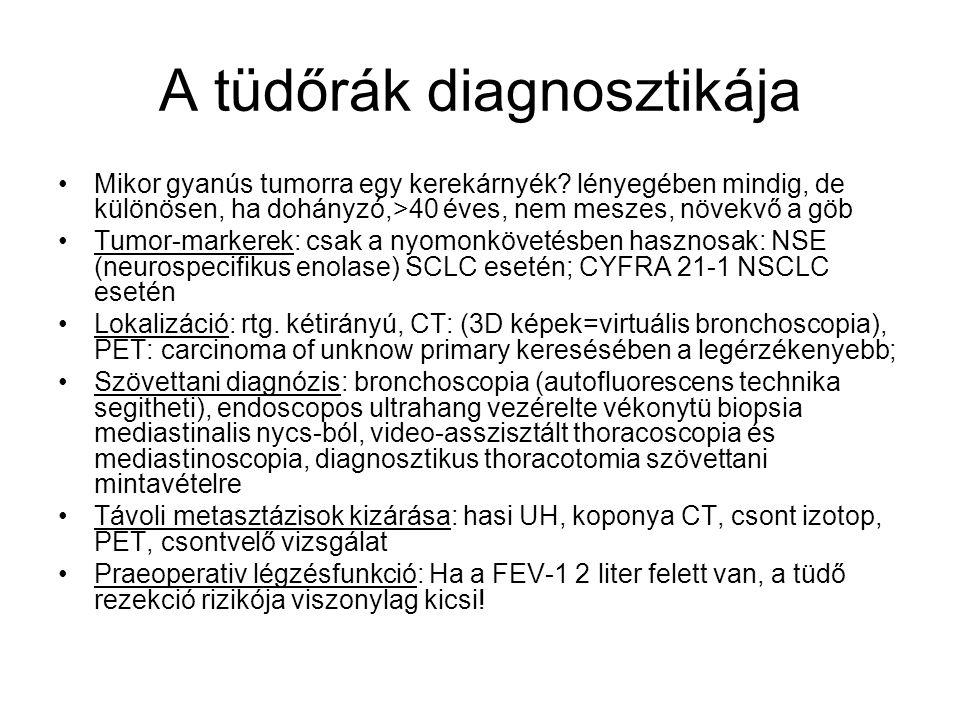 A tüdőrák diagnosztikája Mikor gyanús tumorra egy kerekárnyék.