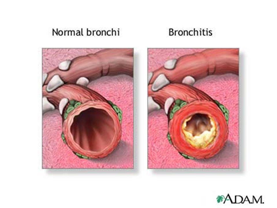 Atípusos pneumonia: chlamydia,mycoplasma, Legionella, vírus lassú kezdet, száraz köhögés, kevés köpet, ennek ellenére kifejezett röntgen eltérés (beszűrődés): lehet centralis pneumonia, vagy többgócú