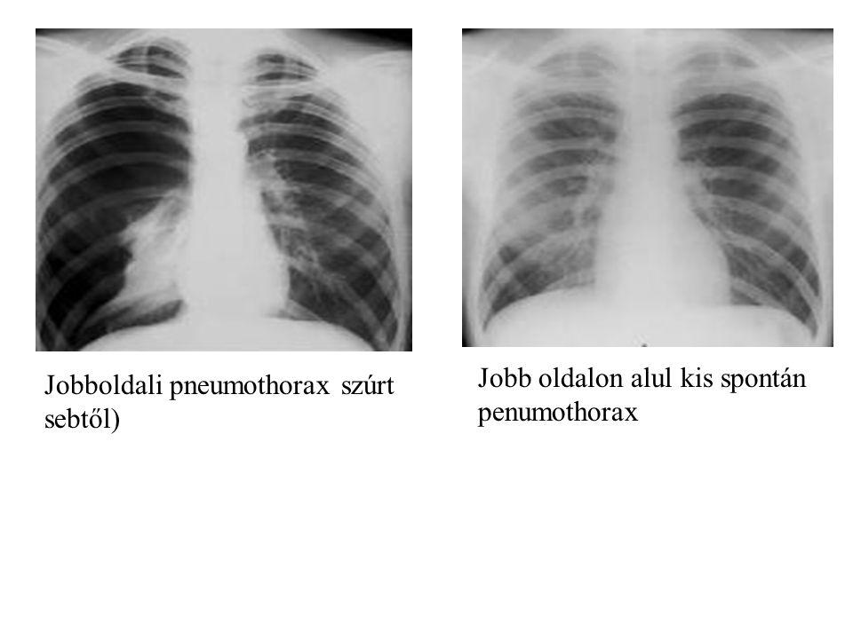 Jobboldali pneumothorax szúrt sebtől) Jobb oldalon alul kis spontán penumothorax
